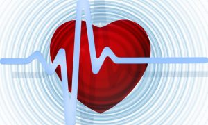 Heart with EKG cardiac rehab after pacemaker insertion