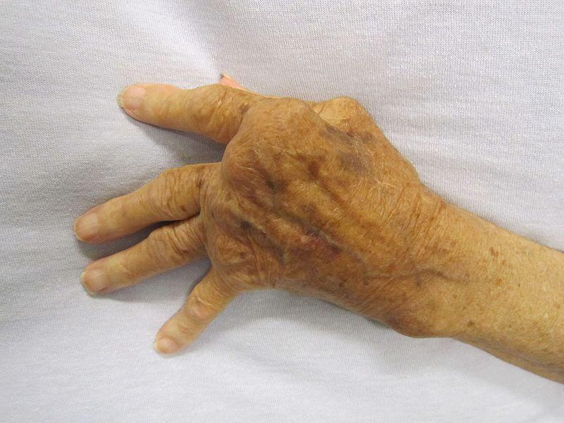 Rheumatoid Arthritis Affects the Entire Body