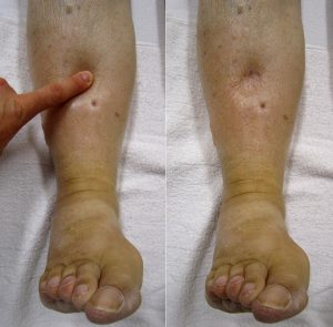 6 Causes of Edema