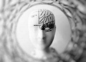 MRI Rheumatoid Arthritis Brain Fog