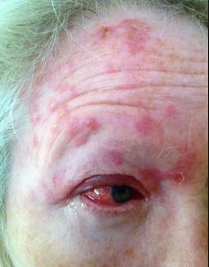 eye shingles virus